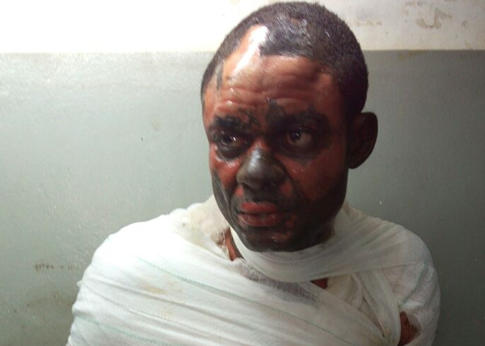 Woman Set Husband, Brother-in-law On Fire