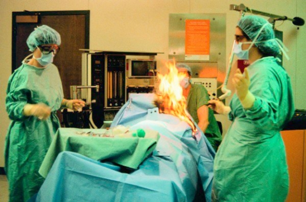 Woman's fart sparks fire during surgery